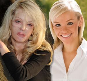 Acid attack survivor Katie Piper