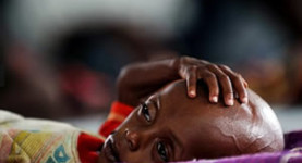 Abdifatah Hassan, who is eleven months old and suffers from severe malnutrition, lies on a cot at a hospital in Dadaab, the world